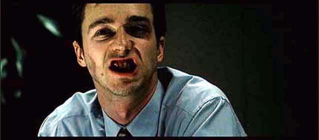 bloodteeth
